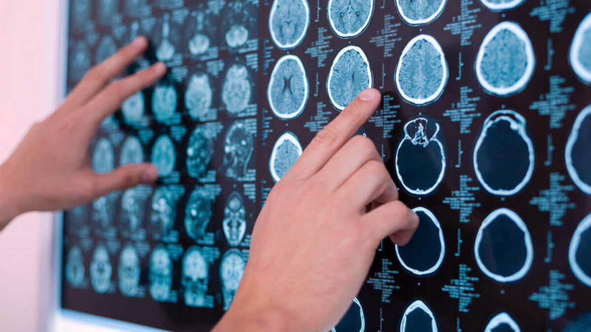 Toronto Traumatic Brain Injury Lawyers